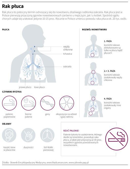 Rak płuca (Maria Samczuk/PAP)